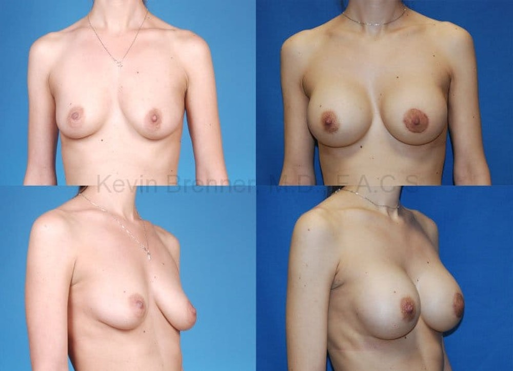 Breast Augmentation Gallery - Patient 1482277 - Image 1