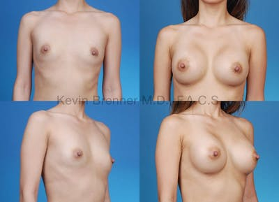Breast Augmentation Gallery - Patient 1482278 - Image 1