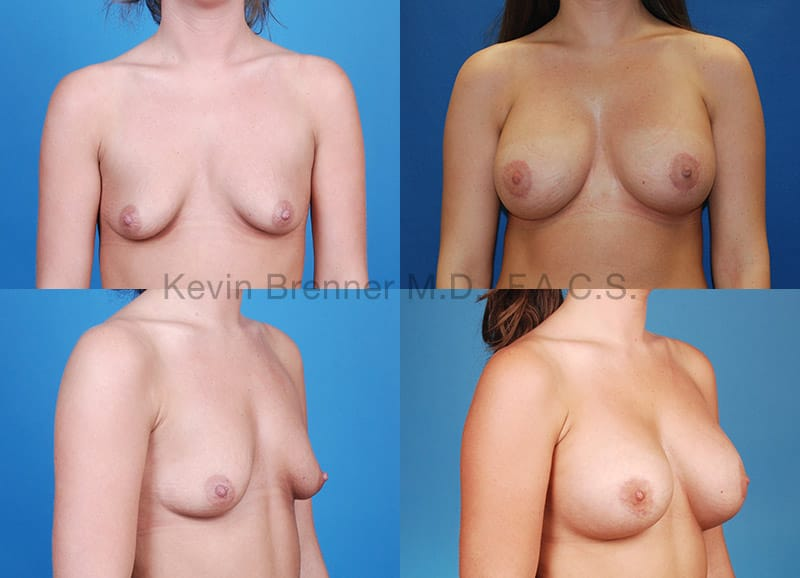 Breast augmentation before and after 4