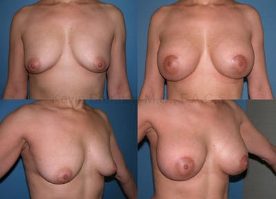Breast Augmentation Gallery - Patient 1482280 - Image 1