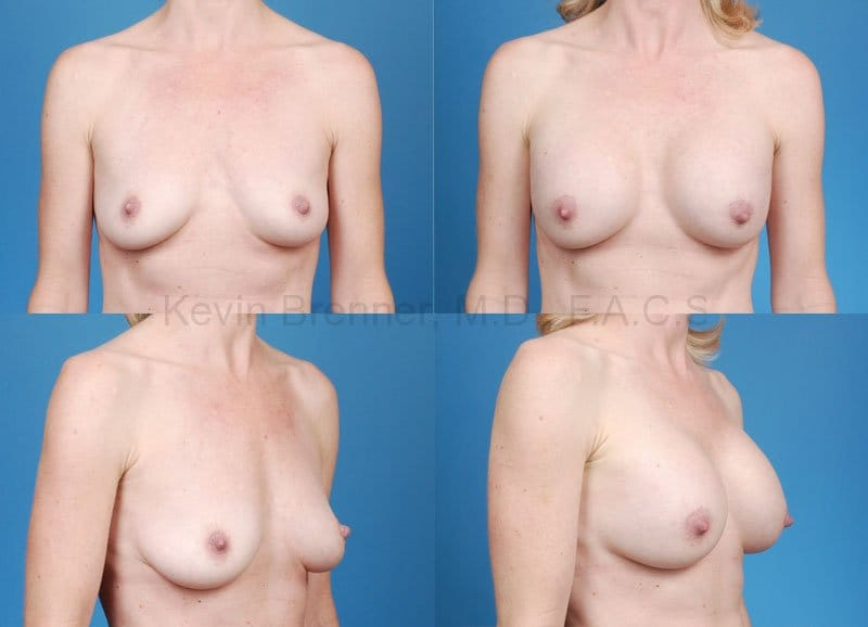 Breast Augmentation Gallery - Patient 1482281 - Image 1