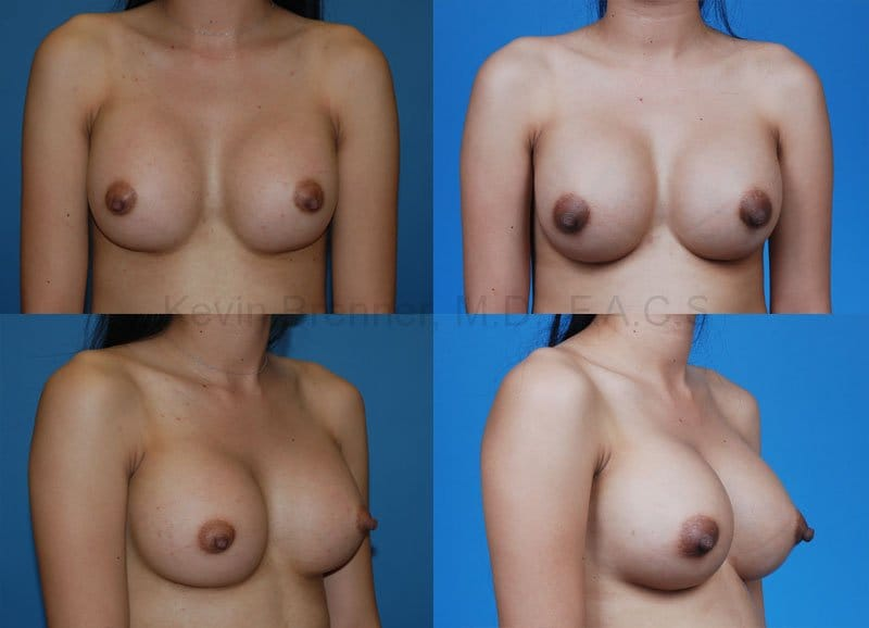 Breast Augmentation Gallery - Patient 1482282 - Image 1