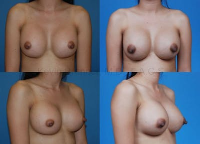 Breast Augmentation Gallery - Patient 1482282 - Image 22