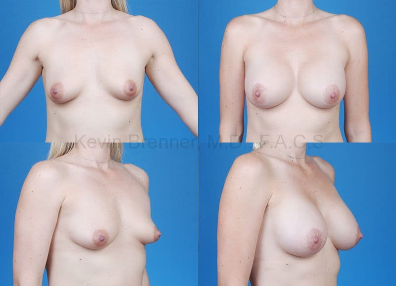 Breast Augmentation Gallery - Patient 1482283 - Image 1