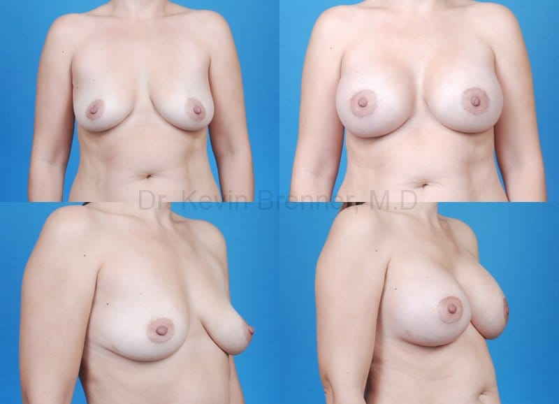 Breast Augmentation Gallery - Patient 1482287 - Image 1