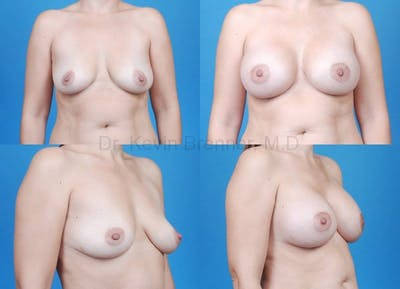Breast Augmentation Gallery - Patient 1482287 - Image 27