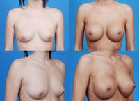 Breast Augmentation Gallery - Patient 1482288 - Image 1