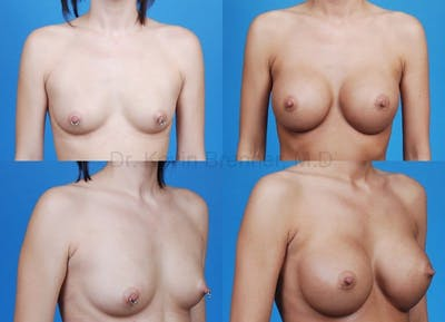 Breast Augmentation Gallery - Patient 1482288 - Image 28