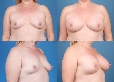 Breast Augmentation Gallery - Patient 1482289 - Image 1