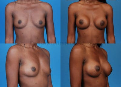 Breast Augmentation Gallery - Patient 1482291 - Image 30