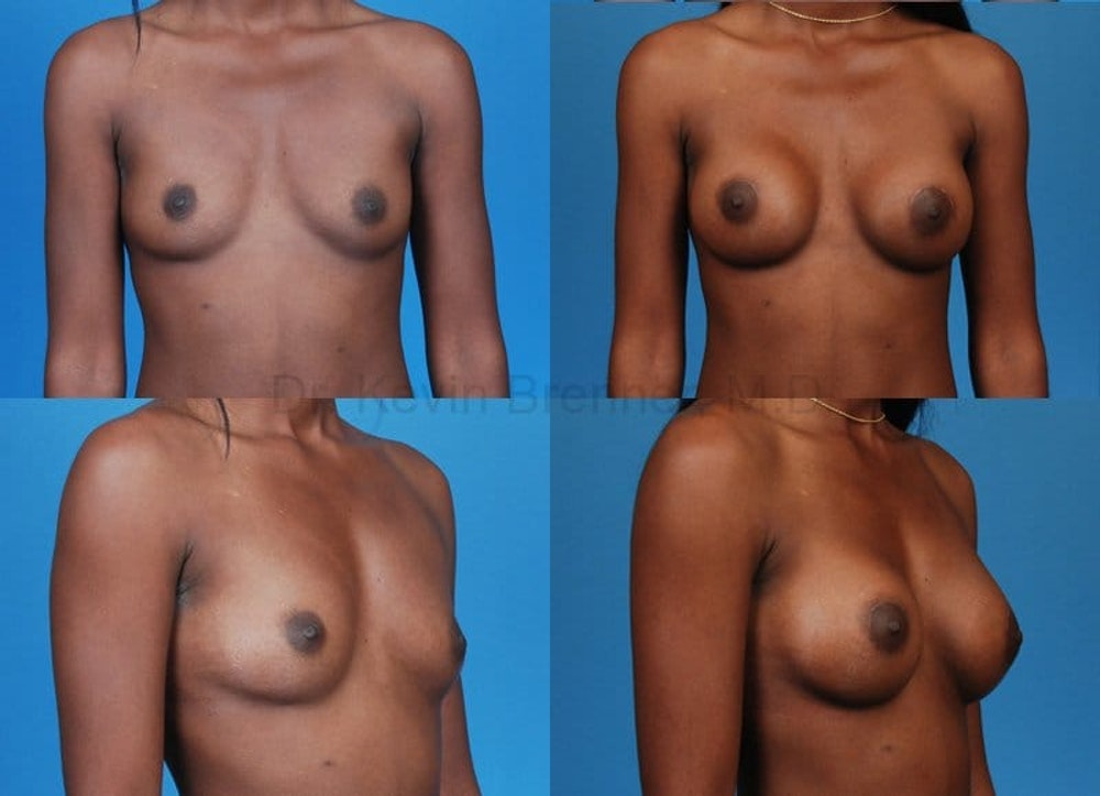 Breast Augmentation Gallery - Patient 1482291 - Image 1