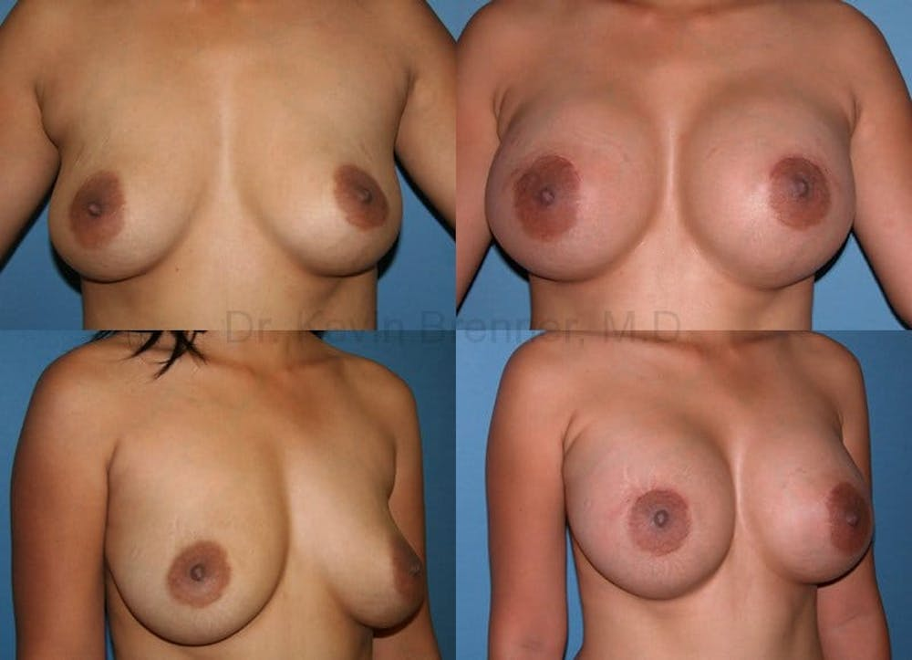 Breast Augmentation Gallery - Patient 1482292 - Image 1