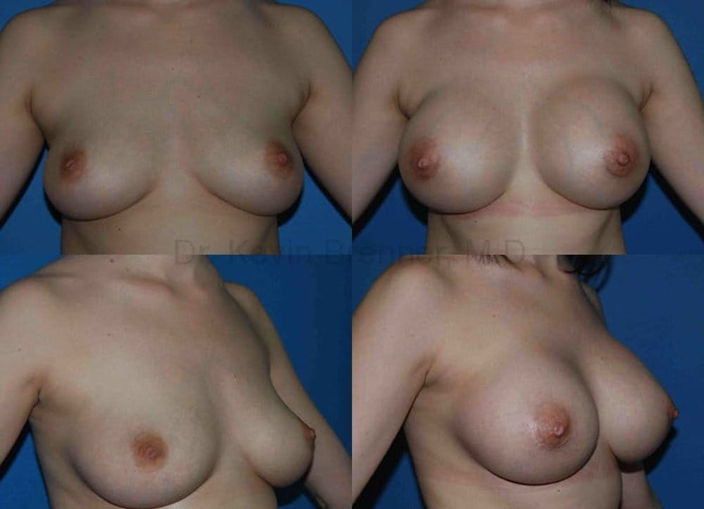 Breast Augmentation Gallery - Patient 1482293 - Image 1