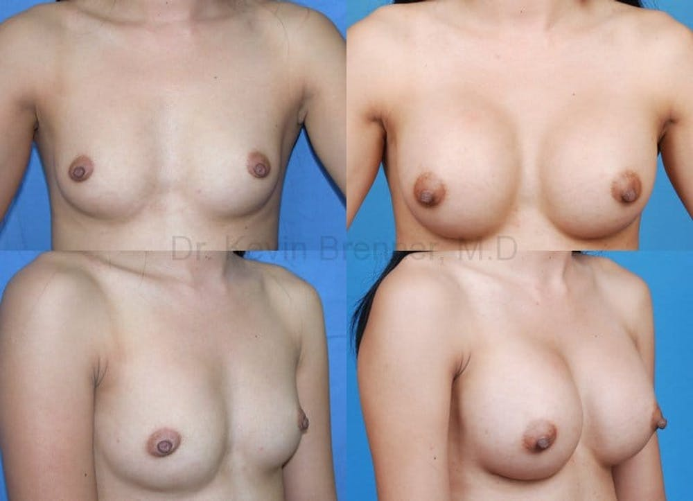 Breast Augmentation Gallery - Patient 1482294 - Image 1
