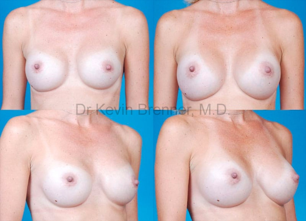 Breast Augmentation Gallery - Patient 1482295 - Image 1