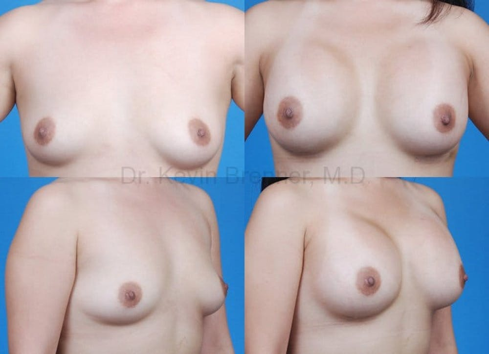 Breast Augmentation Gallery - Patient 1482296 - Image 1