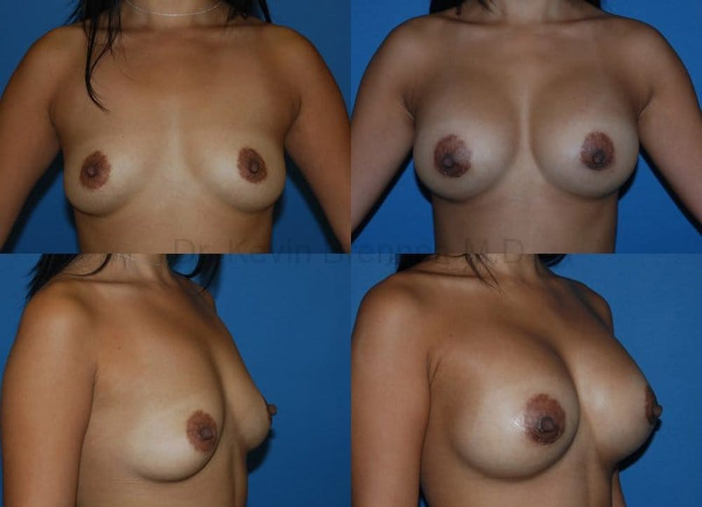 Breast Augmentation Gallery - Patient 1482298 - Image 1