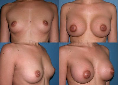 Breast Augmentation Gallery - Patient 1482299 - Image 37