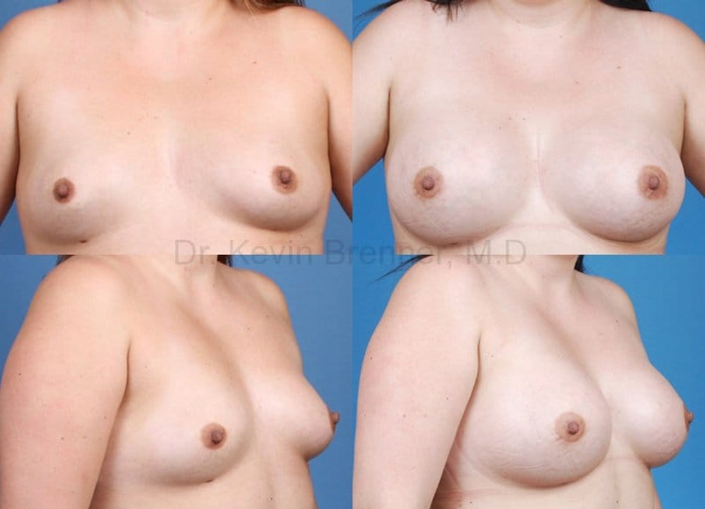Breast Augmentation Gallery - Patient 1482300 - Image 1