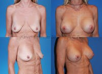 Breast Augmentation Gallery - Patient 1482302 - Image 1