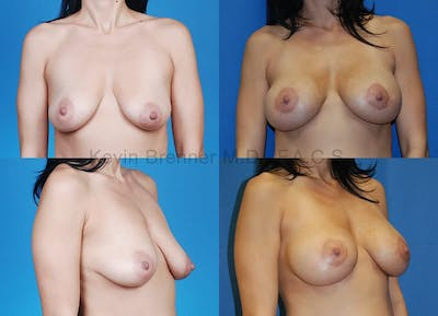Breast Augmentation Gallery - Patient 1482304 - Image 41
