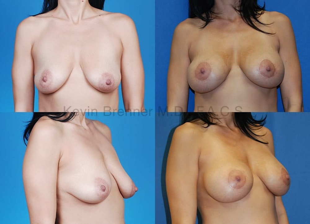 Breast Augmentation Gallery - Patient 1482304 - Image 1