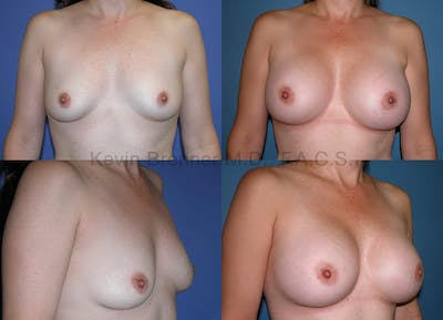 Breast Augmentation Gallery - Patient 1482305 - Image 42
