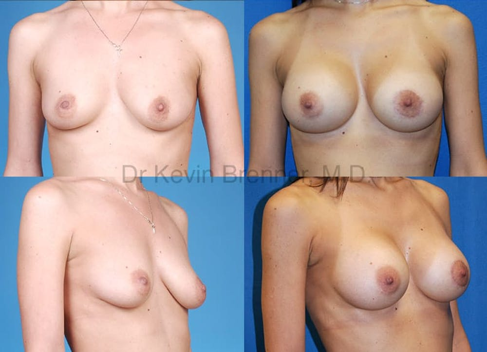Breast Augmentation Gallery - Patient 1482307 - Image 1