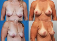 Breast Augmentation Gallery - Patient 1482308 - Image 1