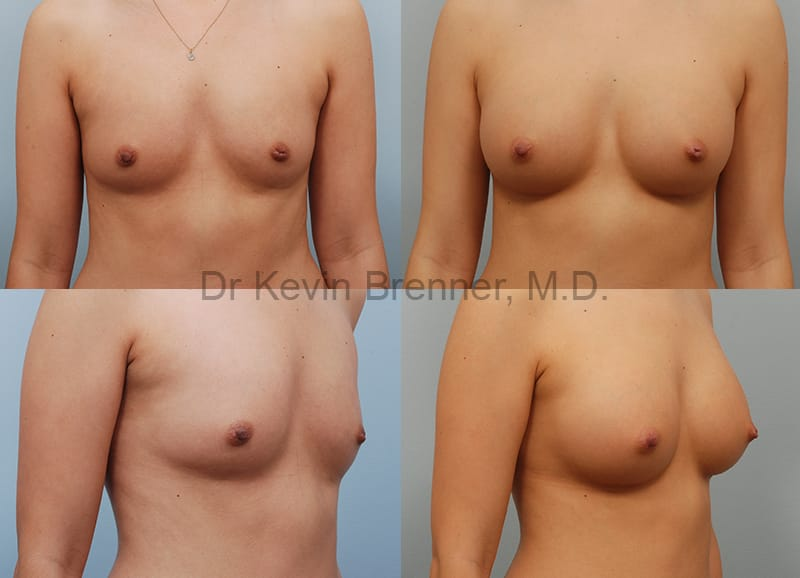 Beverly Hills Breast Implants results