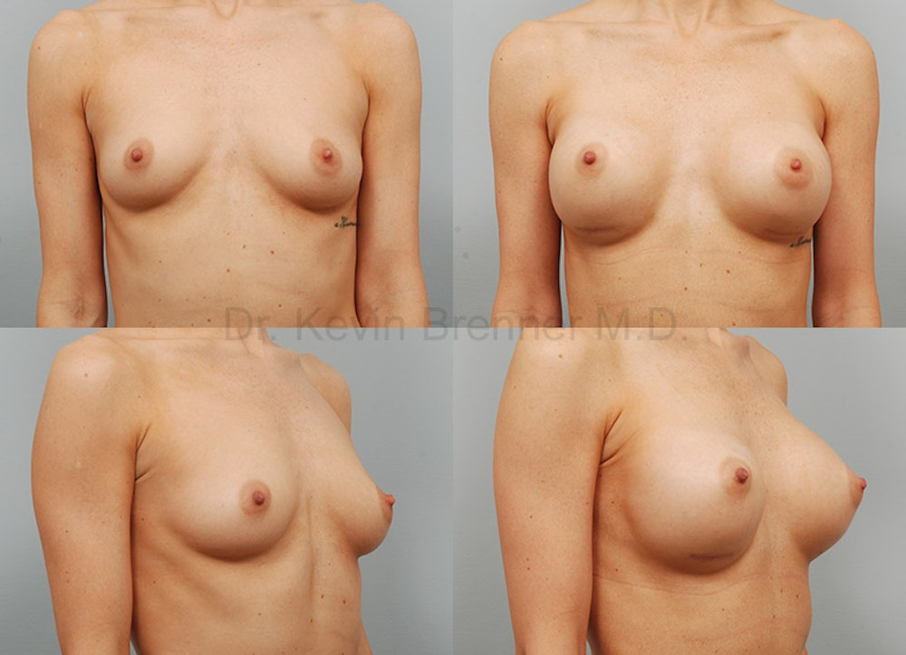 Breast Augmentation Gallery - Patient 1482311 - Image 1
