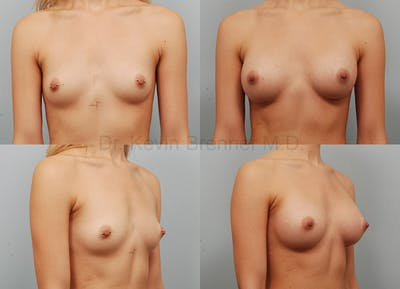 Breast Augmentation Gallery - Patient 1482312 - Image 48