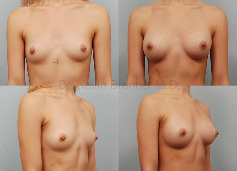 Breast Augmentation Gallery - Patient 1482312 - Image 1