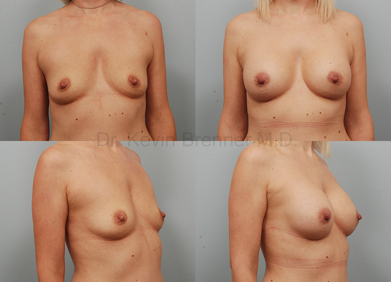 Beverly Hills Breast Augmentation results
