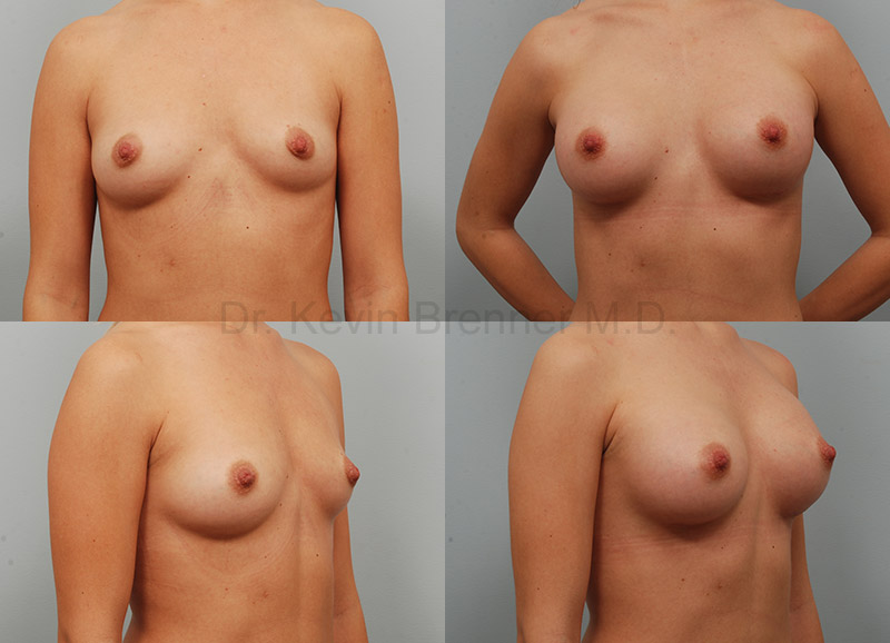 Breast Augmentation Gallery - Patient 1482315 - Image 1