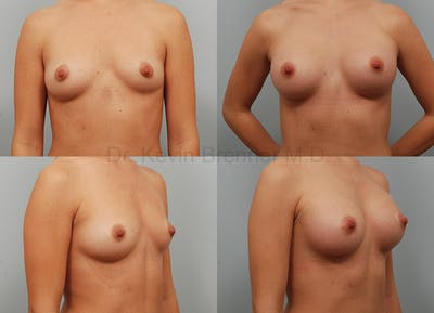 Breast Augmentation Gallery - Patient 1482315 - Image 50