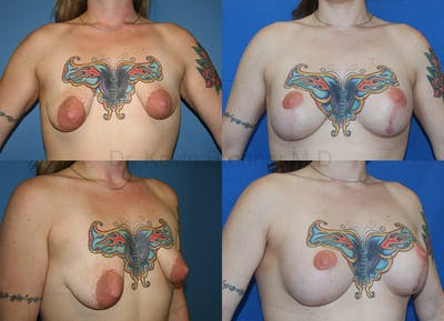 Breast Augmentation Gallery - Patient 1482316 - Image 51