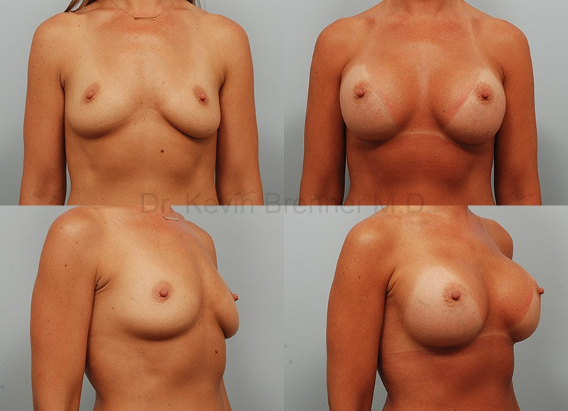 Breast augmentation before and after 5