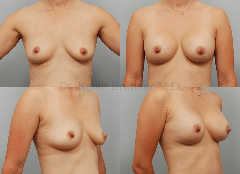 Breast Augmentation Gallery - Patient 1482319 - Image 1