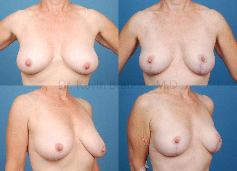 Breast lift before and after 1