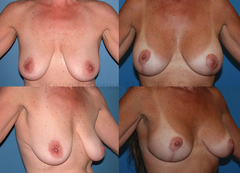 Breast Lift Gallery - Patient 1482326 - Image 1