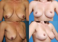 Breast lift before and after 3
