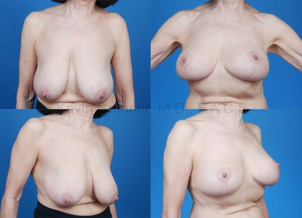 Breast reduction before and after 6