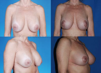 Breast Lift Gallery - Patient 1482333 - Image 1