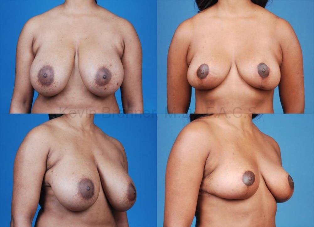 Breast Reduction Gallery - Patient 10131070 - Image 1