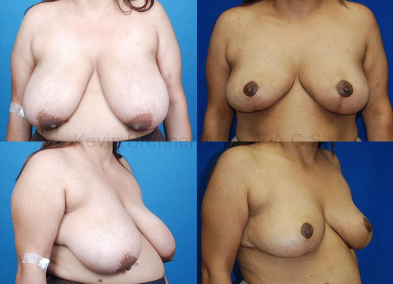 befor and after of Breast Reduction in Beverly Hills