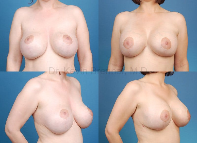 Breast revision before and after 3