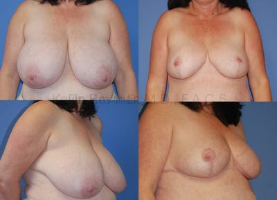 Breast Reduction Gallery - Patient 10131072 - Image 1