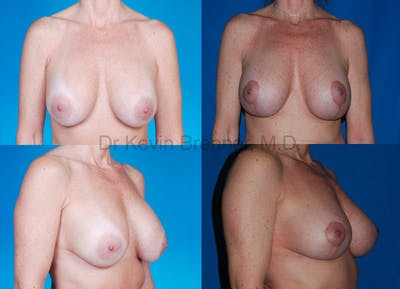 Breast Revision Surgery Gallery - Patient 1482338 - Image 2