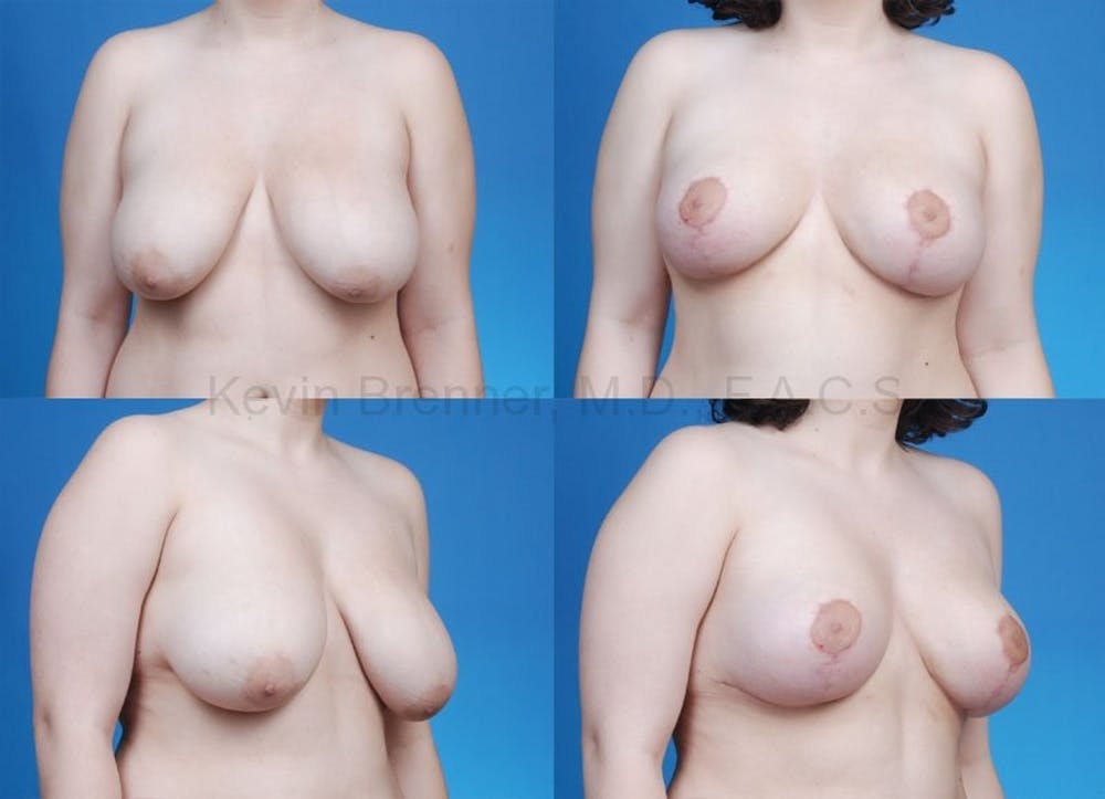 Breast reduction before and after 2